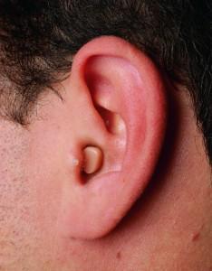 Aparelho auditivo micro-canal